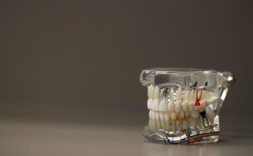 Złe postępowanie odżywiania się to większe niedobory w jamie ustnej a także ich zgubę